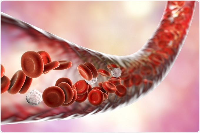 Study Explores Role Of HDAC9 Gene In Solidifying Of Blood Vessel Walls